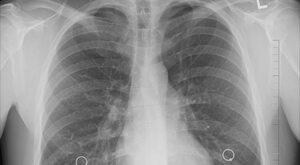 Gen, który szkodzi płucom